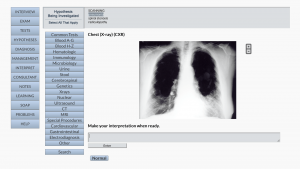 DxR Clinician - Diagnostic Test CXR