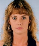 Alice TaylorOB - Hyperthyroidism, Pregnancy